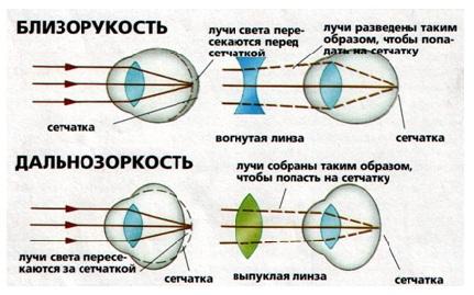 Можно восстановить зрение ребенку 12 лет